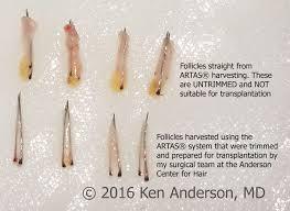 Propecia Shedding After 1 Year by Anderson Center For Hair In Alpharetta U0026 Atlanta Ga