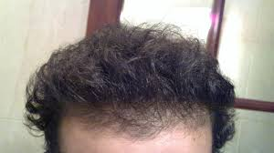 hair rescued 5months minoxidil nizoral 3months finasteride