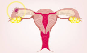 uterine wall shedding during period 100 images friendly guide