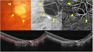 Features Of The Choriocapillaris In Myopic Maculopathy Identified By