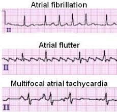 Atrial Fibrillation ECG Review Criteria and Examples