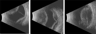 An Echographic Ultrasound Image Of The Eye Shows A Choroidal Detachment Your Retina Specialist Can Use These Images To Differentiate