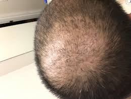 Minoxidil Shedding Phase Pictures by Hair Not Shedding After One Month Post Op Baldtruthtalk Com