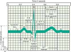rr interval normal range qrs complexes definition of qrs complexes by dictionary