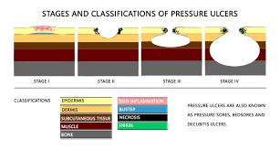 pressure sores bedsores on sacrum sacral back