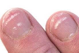 what causes white spot to appear on your nails how to cope new