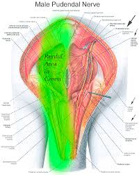 Pelvic Floor Tension Myalgia Physical Therapy by Pudendal Neuralgia And Pelvic Pain