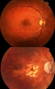 Top Normal Retina Bottom Macular Degeneration