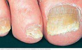 Infected Fingernail Bed by Nail Fungus Symptoms And Causes Mayo Clinic