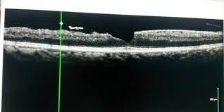 Lamellar Macular Hole With Epiretinal Membrane And An Operculum