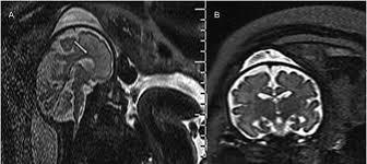 1 T2 Weighted MRI Performed In A Fetus At 313 Weeks Of Gestation Showing Thin Corpus Callosum White Arrow Associated With Mild Macrocrania B