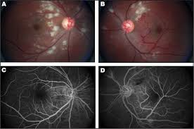 A Dilated Fundus Examination Of The Right Eye Revealed Sharp Optic Nerve Margins