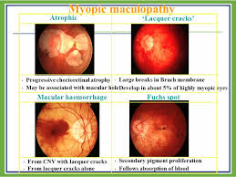 Myopic Maculopathy Atrophic Lacquer Cracks Macular Haemorrhage