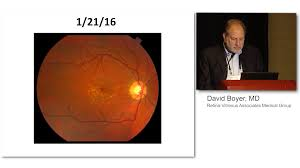 OCT A May Provide Better Visualizations Of Vascularized PEDs In AMD Patients Than FA