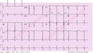 Premature Atrial Contractions PAC ECG Example 1