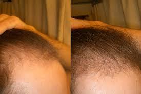 propecia 5mg minox 5 great results baldtruthtalk com