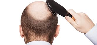 Ini Mengapa Kepala Botak Seringkali Terlihat Licin