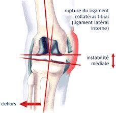 douleur interieur genou course a pied entorse du genou atteinte d un ou des 2 ligaments croisés