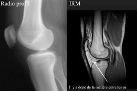 l arthrose orthopedie pour tous