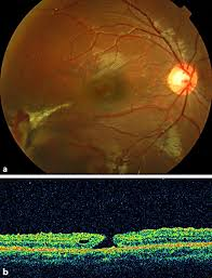 Color Photograph And Optical Coherence Tomography OCT Image Of The Right Eye 6 Weeks