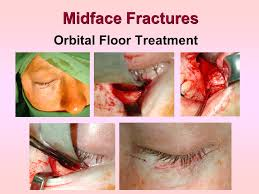 Orbital Floor Fracture Treatment by Evaluation And Management Ppt Video Online Download