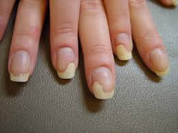 nails detaching from nail bed beautify themselves with sweet nails