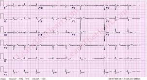 Atrial Fibrillation with Bradycardia ECG Example 1