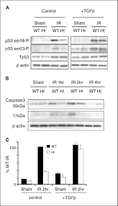 inhibition of transforming growth factor β1 signaling attenuates