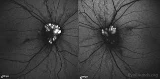 Autofluorescence Both Eyes Areas Of Increased At The Nerve Corresponding To Disc