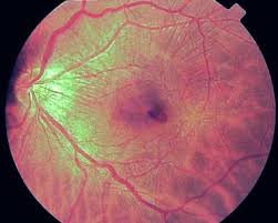 Grade 2 Epiretinal Membrane Causing Striations In