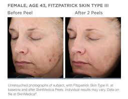 Pumpkin Enzyme Peel Before And After by Dermal Fillers Orlando Anti Aging Winter Park