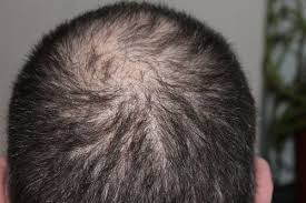 Minoxidil Shedding Phase Duration by Minoxidil Vs Male Pattern Baldness Who Wins An In Depth