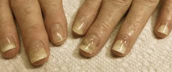 possible nail loss with chemo did you know bc advisor