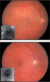 Macular Epiretinal Membrane A Preoperative Appearance Of Inset Visual Acuity Was 6 60 Note The Retinal Folds And Vascular Compression