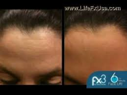 Pumpkin Enzyme Peel Before And After by Lifefx Global Fx3 Enzyme Peel 6 Minute Facelift Part 2 Youtube