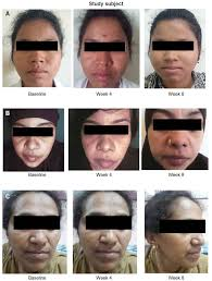 Woods Lamp Examination Melasma by Full Text Assessment Of Efficacy Safety And Tolerability Of 4 N