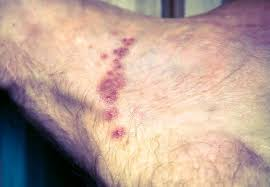 Heat Rash From Tanning Bed by Scabies Images Symptoms And Treatments