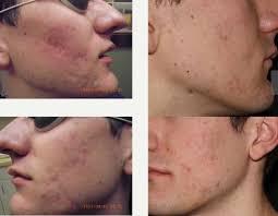 Pumpkin Enzyme Peel Before And After by Kahn Dermatology Blog U2014 Kahn Dermatology Pllc