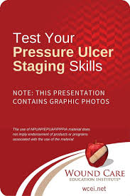 Bed Sores Pics by 29 Best Pressure Ulcer Information Images On Pinterest Pressure