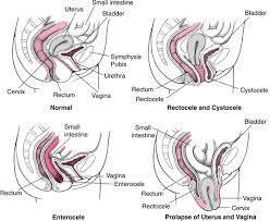Male Pelvic Floor Relaxation Exercises by Overview Of Pelvic Relaxation Syndromes Gynecology And