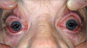 Christmas Tree Cataract Surgery by Bilateral Iris Prolapse Secondary To Eye Rubbing Following