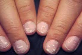 white spots on nails pictures causes treatment