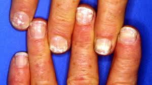 nail abnormalities symptoms causes and prevention