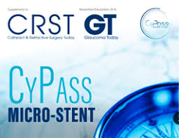Alcon Surgical Sinking Spring Pa by Cypass Micro Stent Pairs Well With Cataract Surgery Eyetube