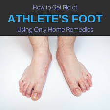 13 Home Reme s for Athlete s Foot Cure & Get Rid of It Naturally
