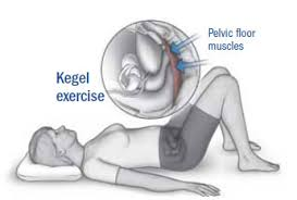 Pelvic Floor Muscle Training by New Guidelines Recommend Kegels Other Lifestyle Treatments For