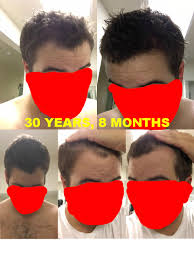 Rogaine Foam Shedding Phase by My Quite Successful I Think Journey With Finasteride And