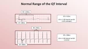 rr interval normal range advanced ekgs the qt interval and qt