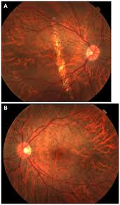 Full Text Progressive Symmetric Vertical Macular Wide Angioid Streak Like Lacque