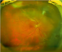 Retinal Detachment In A Patient With Type 1 Boston KPro OptomapR Image